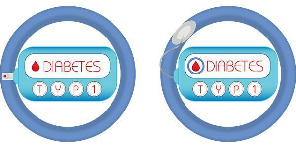 diabetes-type1